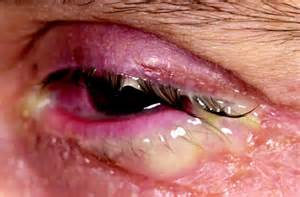 eye bacterial infections picture 7