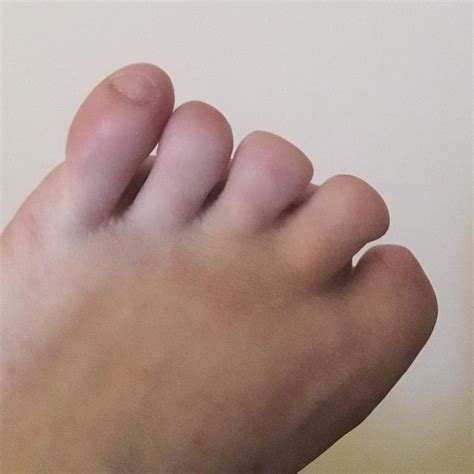 women with amputated fingers and toes picture 9