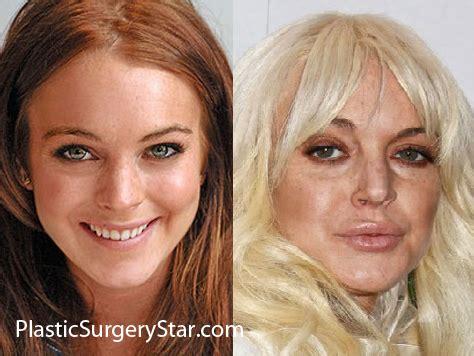 meth wrinkles picture 9