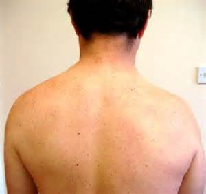 deltoid muscle paralysis picture 10