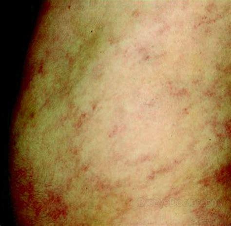 libido reticularis picture 1
