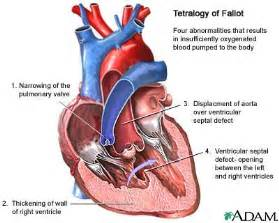 decreased uterine blood flow may result from: picture 11