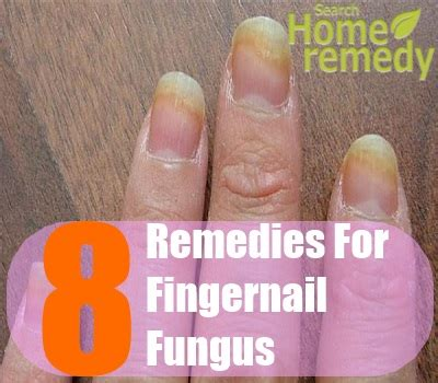 hand nail fungus cure picture 5