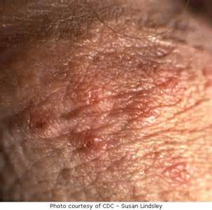 female herpes pictures picture 3