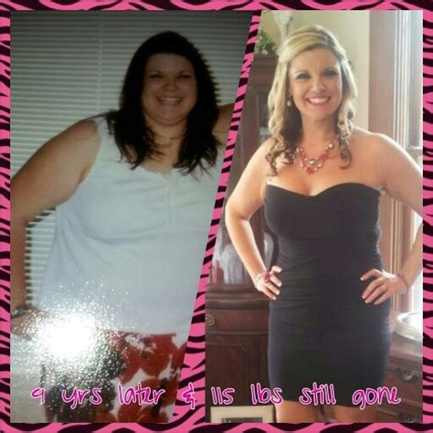 weight loss band picture 15