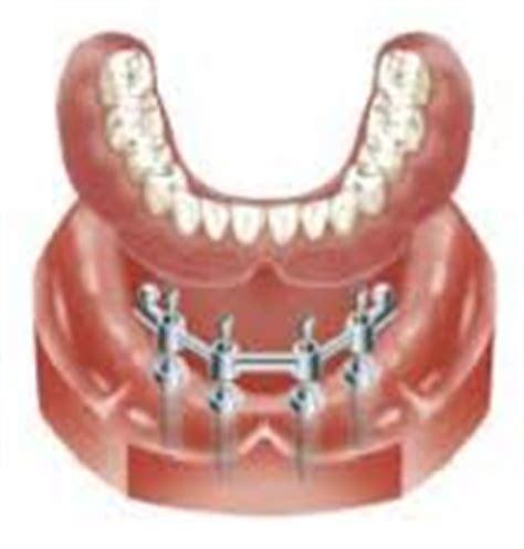 false teeth permenant picture 3