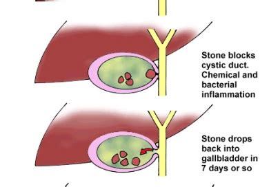 cholecysis more condition_symptoms picture 3