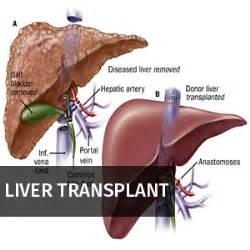 liver transplant surgery picture 11