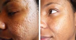 acne removal in san francisco picture 3