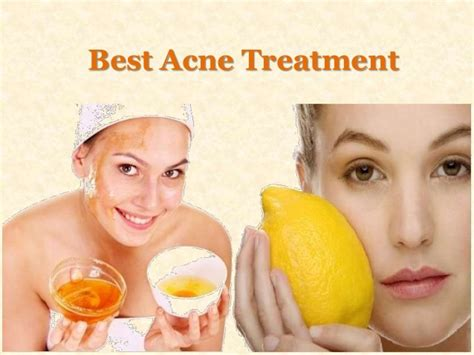 filipina's acne medicine best picture 10