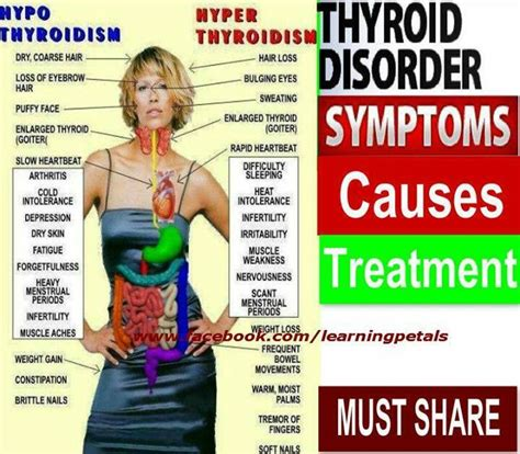 treating hyperthyroidism now gaining weight picture 2