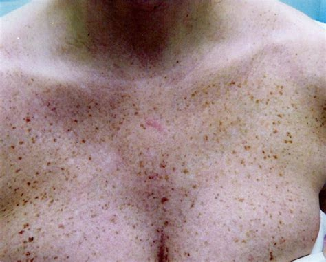 what does liver spots look like picture 9