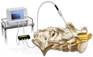 facet joint nerve ablation picture 15