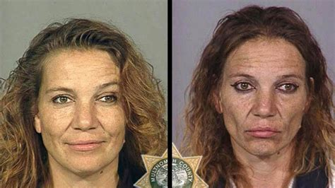 meth and drugs physical aging picture 9