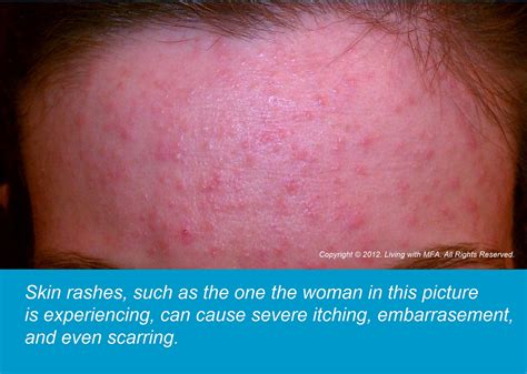 soy causes acne picture 6