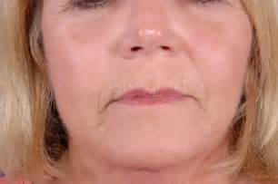 upper lip wrinkle remover picture 3