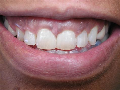 fixing gap in teeth picture 11