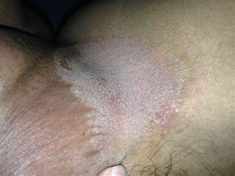 dry skin in vagina area picture 5