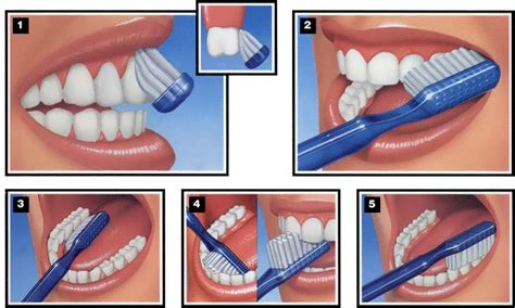 does brushing teeth cause sealants to wear away picture 2