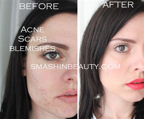 acne scar makeup picture 6