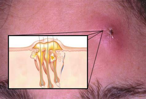 staph aureus boils picture 5