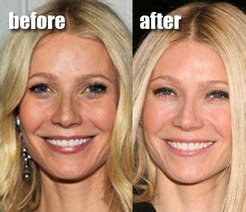 aging technique picture 2
