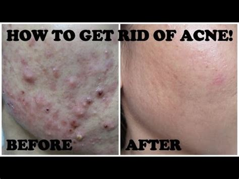 how to fix acne picture 10
