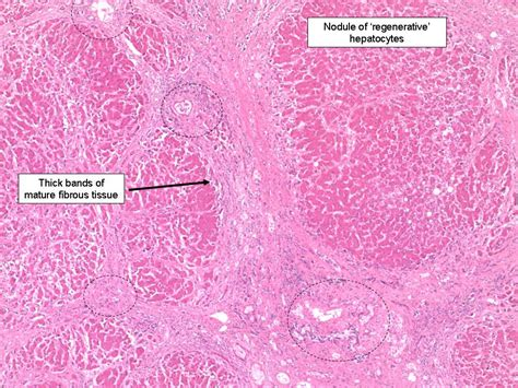 advanced portal cirrhosis liver picture 9