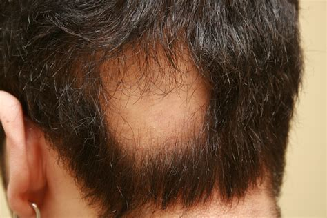 alopecia hair loss picture 2