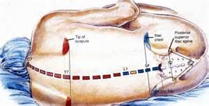 can epidural injection effect an erection picture 7