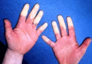 causes of hand and joint pain picture 5