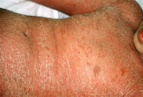 what does a plantar wart look like picture 8