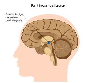 nathan zakheim disease picture 13