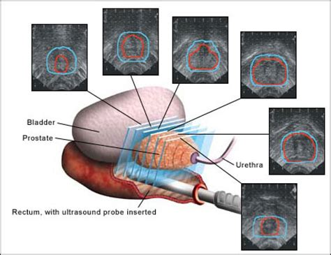 bladder ultrasound cpt code 2013 picture 2