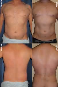 lipo for male belly fat love handles picture 3