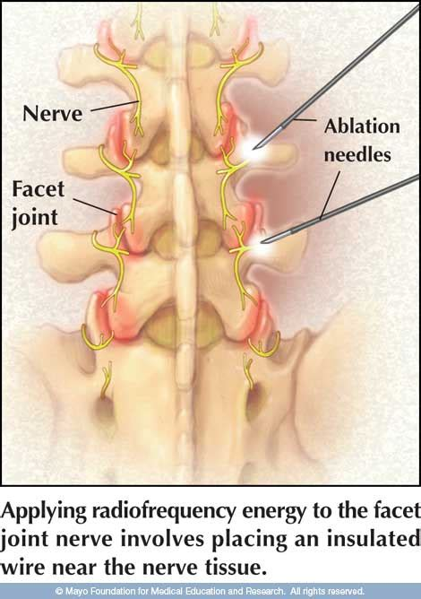 facet joint nerve ablation picture 10