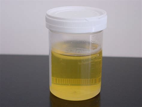 Urine tests for infected prostate picture 1