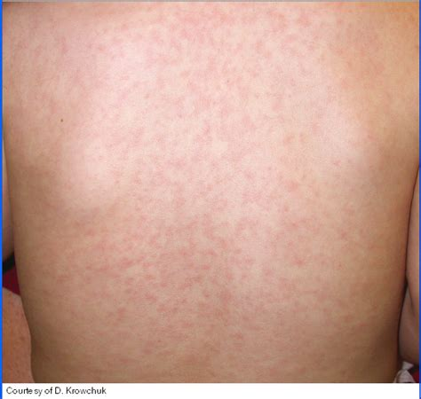herbal remedies for coxsackie virus removal picture 11