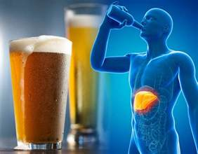 alcohol induced liver disease picture 10