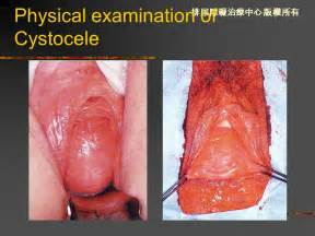 bladder prolapse pictures picture 6