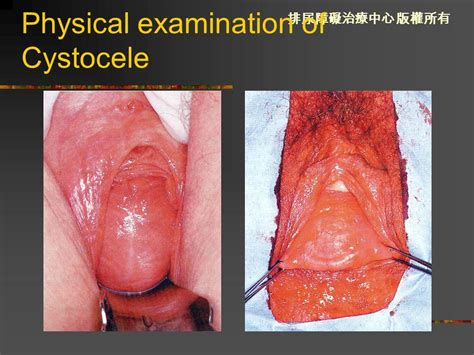 bladder prolapse symptoms picture 10