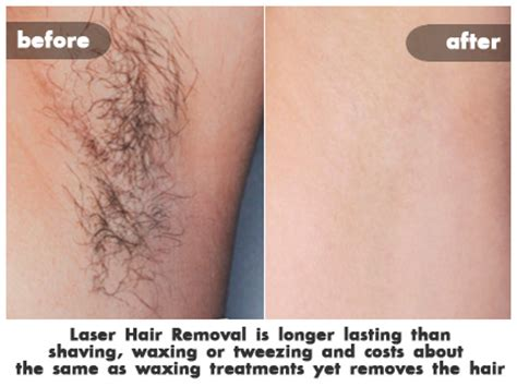 cost of hair removal picture 2