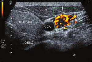 abnormal thyroid picture 17