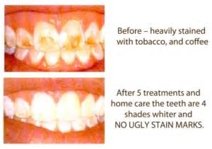 stubborn stains taking longer to whiten than other teeth picture 2