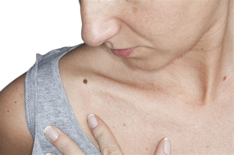 laser hair removal nj picture 10