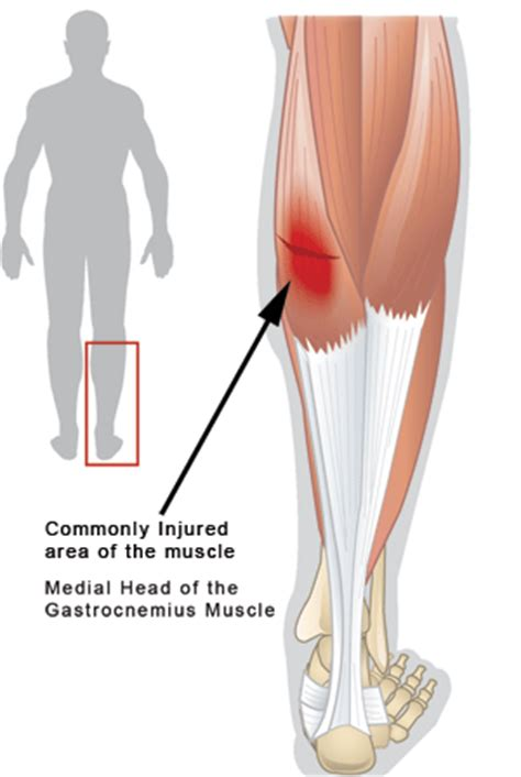 muscle injury leg picture 1