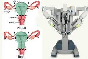 what is da vinci hysterectomy posture for surgery picture 7
