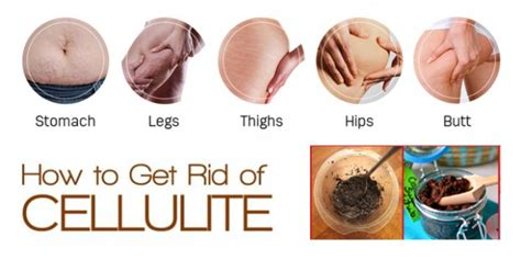 can lipozene help reduce cellulite picture 13