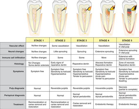 tooth pain nerve inflammation picture 2