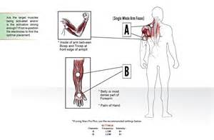 where to place electros for electrical stimulation of picture 9